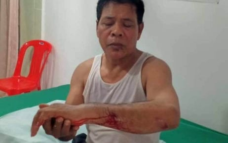 Former CNRP commune chief Sin Bona at a private clinic in Phnom Penh after being attacked by two unidentified men on September 25, 2019 (CNRP activist's Facebook page)