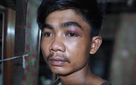 Thai Sameat says he was beaten by Prey Veng police officers on July 20, 2020, with a photo of his black eye from the incident supplied by Sameat.