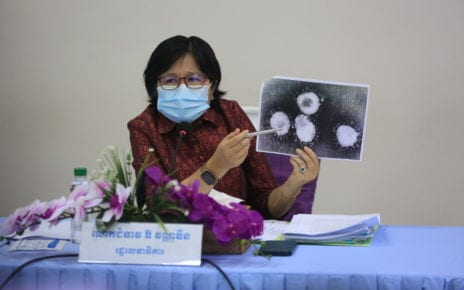 Health Ministry spokesperson Or Vandine points at a coronavirus image at a press conference at the ministry on February 23, 2021. (VOD)