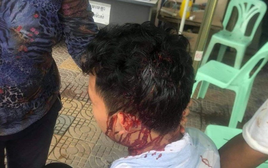 A photo supplied by Prum Chantha shows her son's head injury after he was attacked with a brick by unknown assailants.