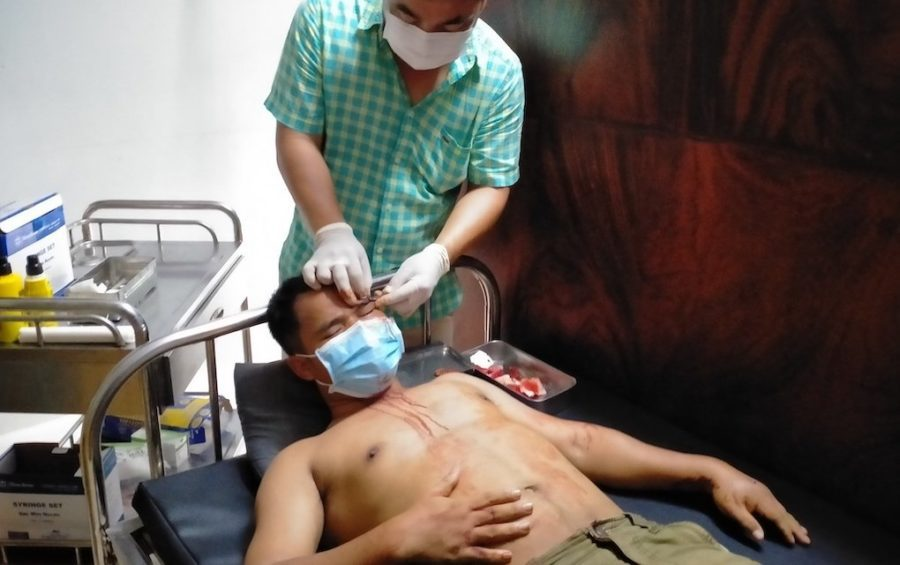 Sin Khon, a former CNRP youth activist, receives medical care at a private clinic on May 12, 2021. (Supplied)