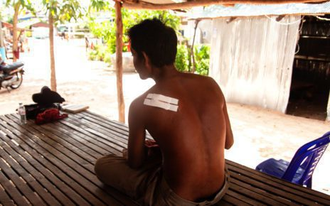 Mam Chantha's bullet wound, at his house in Kandal province's Ang Snuol district. (Gerald Flynn/VOD)